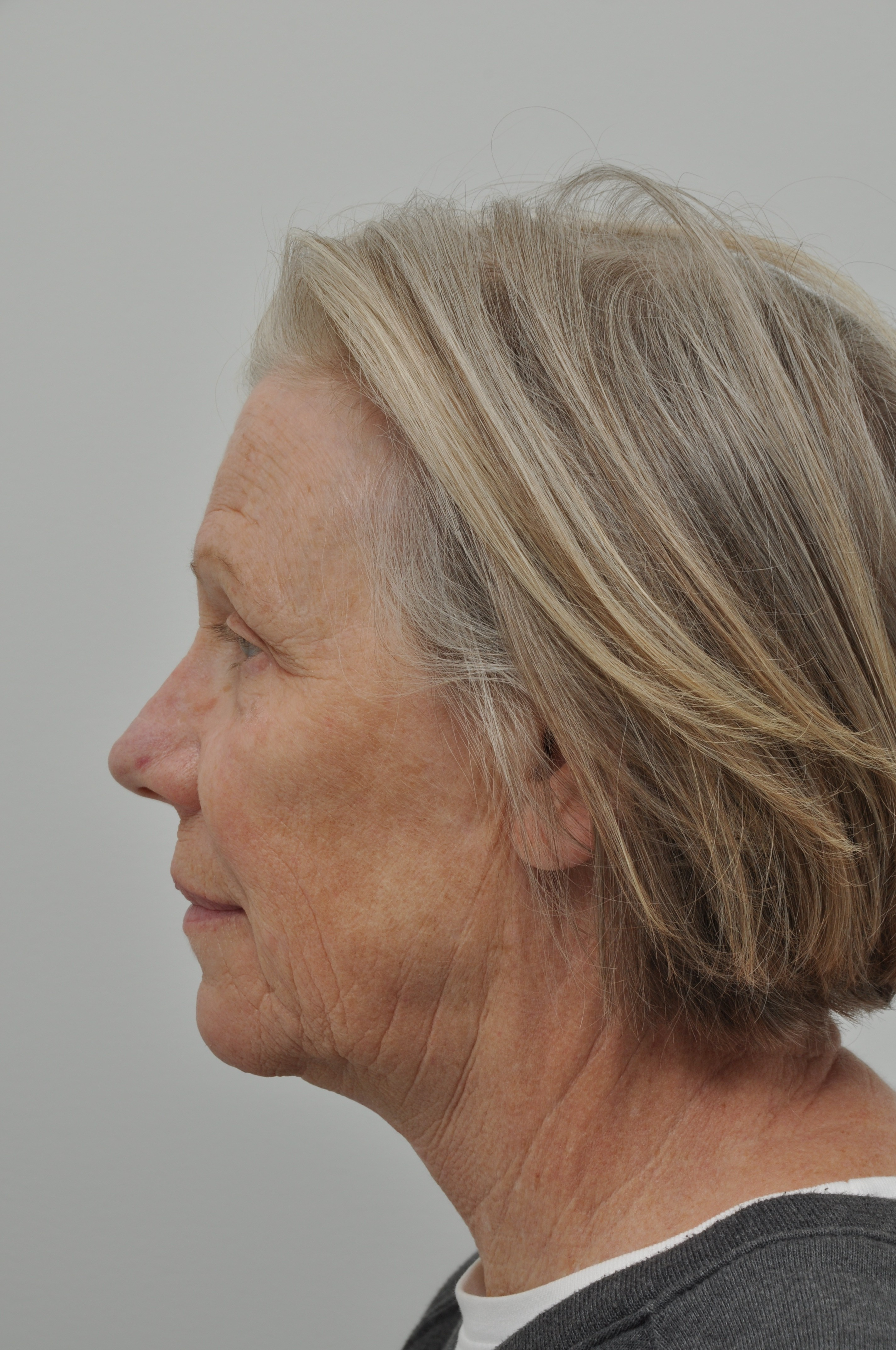 Before and After Facelift & Neck Lift & Facial Fat