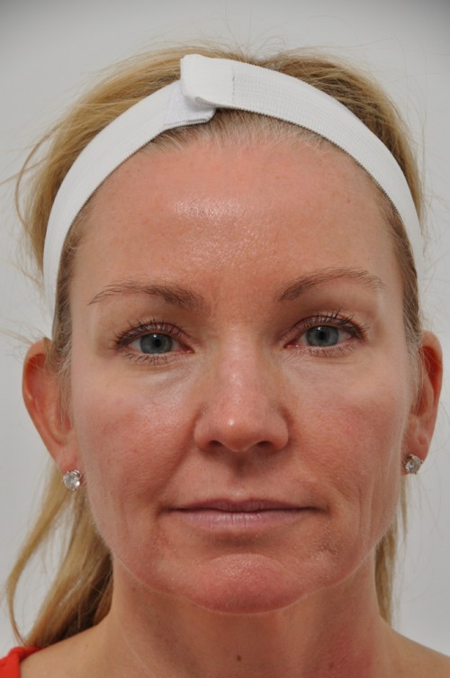 Ultherapy | Marietta Facial Plastic Surgery